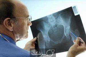 بیماری التهابی لگن | پزشکت