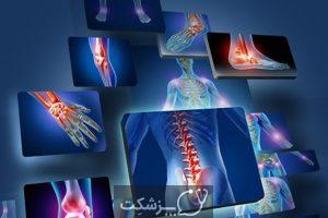 آرتریت روماتوئید | پزشکت