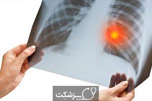 بلع جسم خارجی | پزشکت