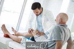 آرتروز زانو | پزشکت