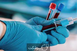 سندرم شیرین | پزشکت