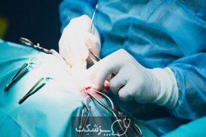 تشنج بزرگ مال | پزشکت