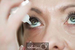 روزاسه چشمی | پزشکت