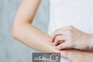 حساسیت به پنی سیلین   پزشکت