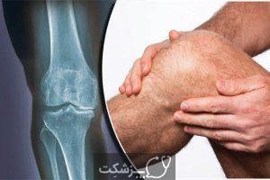 عفونت مفصلی | پزشکت