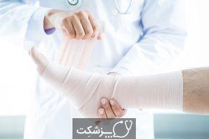 کشیدگی رباط | پزشکت