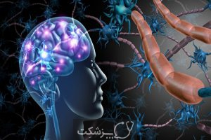 آلزایمر | پزشکت
