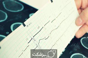 تشنج میوکلونیک | پزشکت