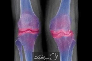 کیست های استخوانی ساب کندرال | پزشکت