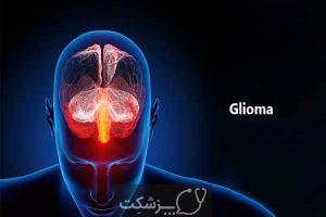 گیلوما | پزشکت