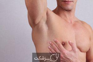 درد زیر بغل | پزشکت