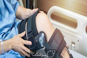 آسیب رباط صلیبی قدامی   پزشکت
