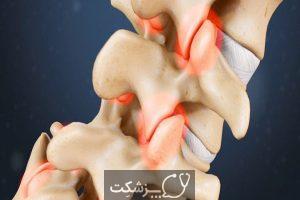 کمر درد | پزشکت