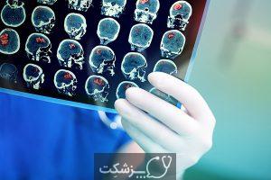 ضایعات مغزی | پزشکت