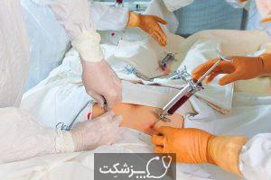 لوسمی حاد میلوژن | پزشکت