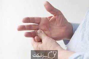 آمیلوئیدوز | پزشکت