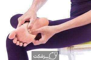 داغ شدن کف پا | پزشکت