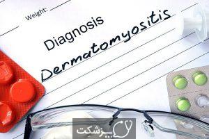 درماتومیوزیت | پزشکت