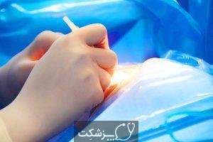 جداشدگی شبکیه | پزشکت