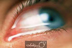 آبریزش چشم | پزشکت
