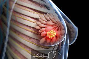 مراحل سرطان پستان | پزشکت