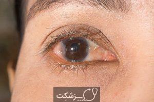ناخنک چشم | پزشکت