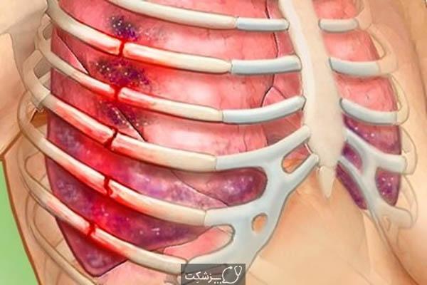 شکستگی دنده | پزشکت