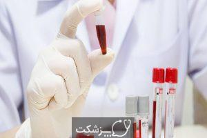 ساکروئیدوز | پزشکت