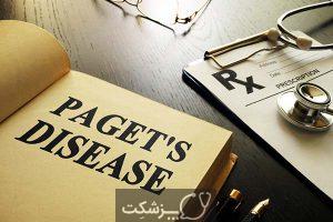 بیماری پاژه | پزشکت