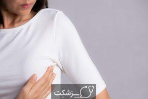 سرطان پستان | پزشکت