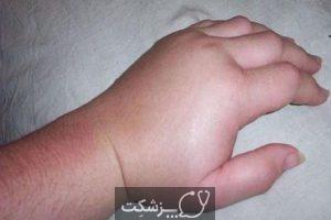 عارضه پوستی کهیر | پزشکت