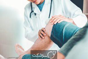 کشیدگی ماهیچه | پزشکت