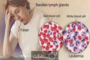 زندگی با لوسمی لنفوسیتی مزمن | پزشکت