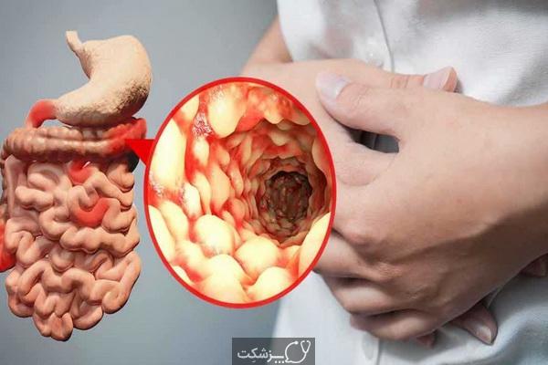 بیماری کرون | پزشکت