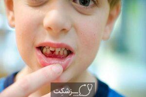 دندان شیری | پزشکت