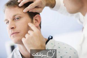 جراحی موهز | پزشکت