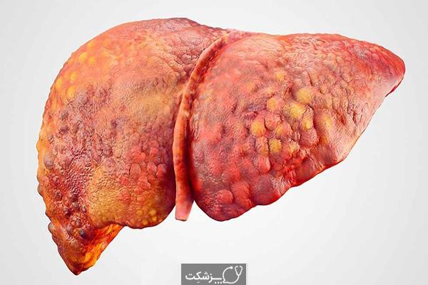 بیماری کبد چرب | پزشکت