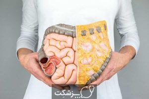 کلونوسکوپی | پزشکت