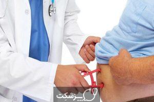چاقی | پزشکت