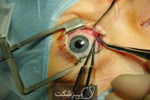 انحراف چشم | پزشکت