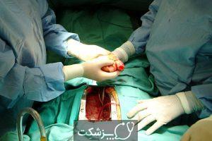 پیوند قلب | پزشکت
