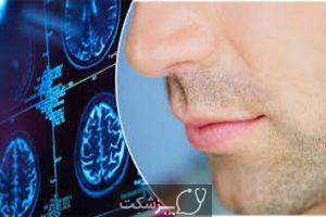 اختلالات بویایی در کروناویروس   پزشکت