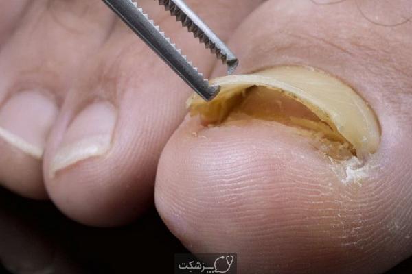 ناخن پا جدا شده | پزشکت