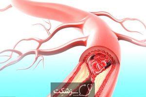 بیماری شریان محیطی | پزشکت