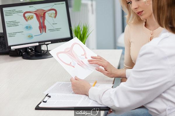 رابطه جنسی بعد از هیسترکتومی | پزشکت