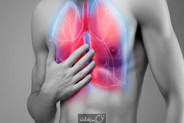 سندرم دیسترس تنفسی حاد | پزشکت