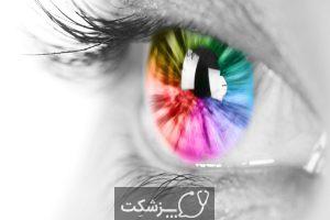همرنگ نبودن عنبیه چشم ها | پزشکت