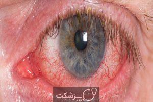 انسداد ورید شبکیه | پزشکت