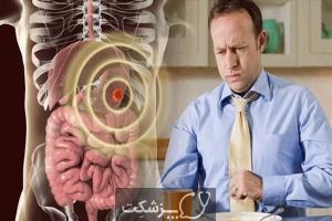 سرطان معده | پزشکت