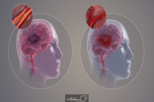 سکته مغزی | پزشکت